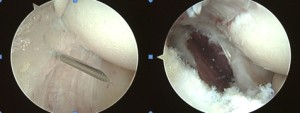 Tennis Elbow Release via Arthroscopic Approach