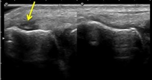 Ultrasound Scan of Tennis Elbow