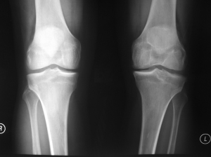 Chronic ACL Tear Left Knee