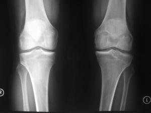 Chronic ACL Tear Left Knee