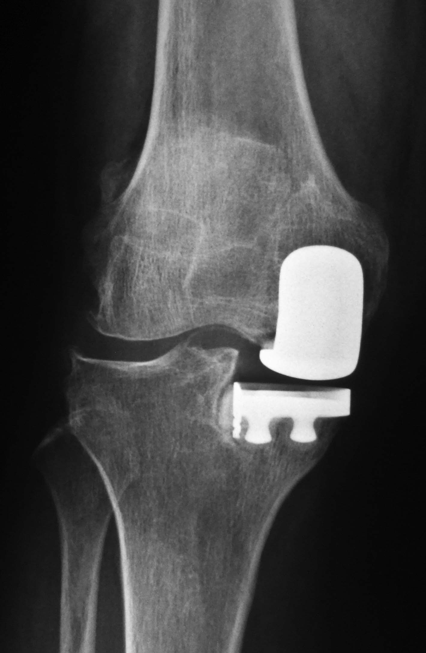 Partial knee replacement for painful knee hc chang orthopaedic uni compartmental publicscrutiny Image collections