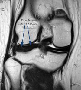 MRI Showing a Torn Discoid Lateral Meniscus