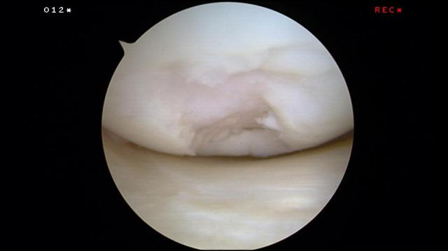 Cartilage Defect of the Knee