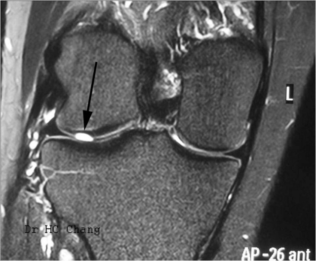 lateral femoral condyle cartilage ulcer