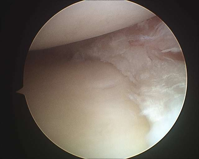 Medial Meniscectomy