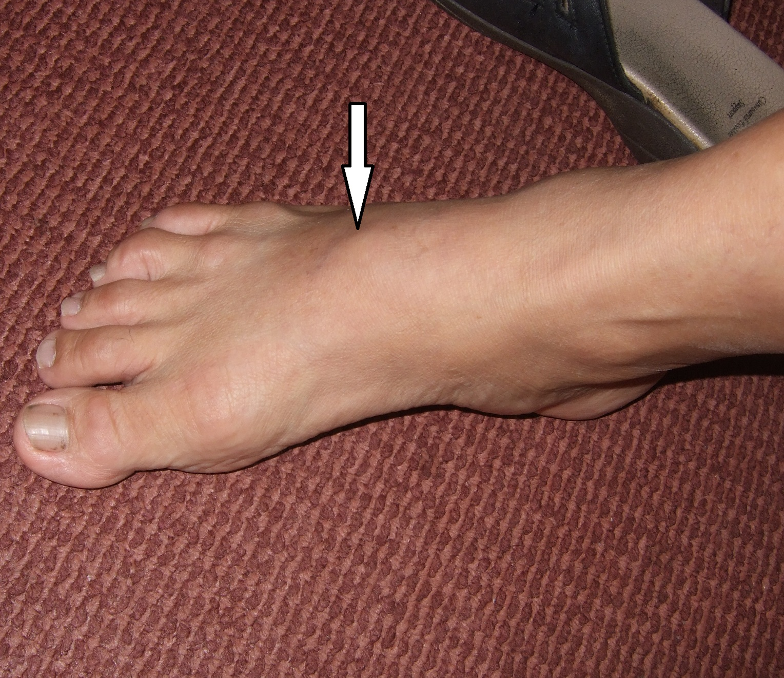 Painful Lump Over The Foot  It Could Be Bony Spurs  Hc -5258