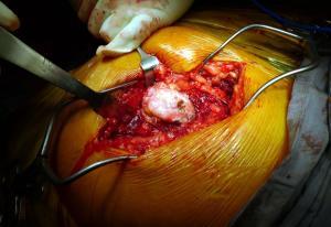 Osteoarthritic Hip