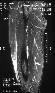 Rectus Femoris Rupture MRI