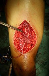 Repair of Rectus Femoris Rupture