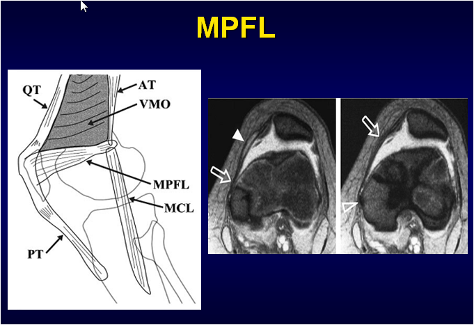 Recurrent Kneecap Dislocations – The Role of the Medial ...