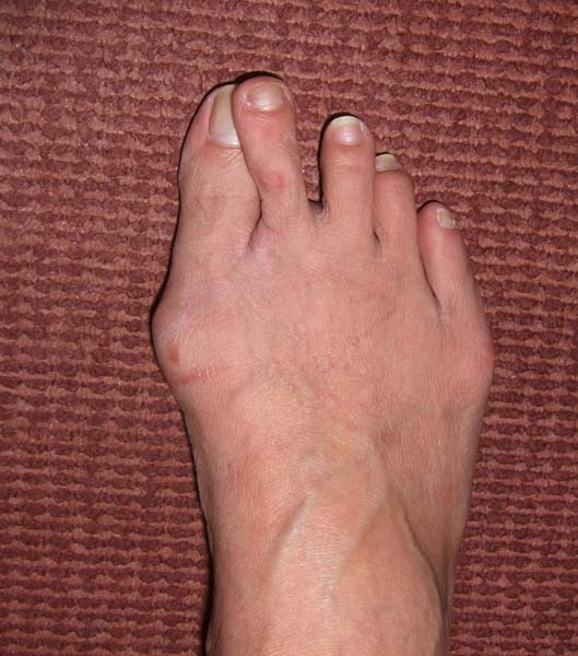 Right Foot Hallux Valgus with Over-riding 2nd Toe