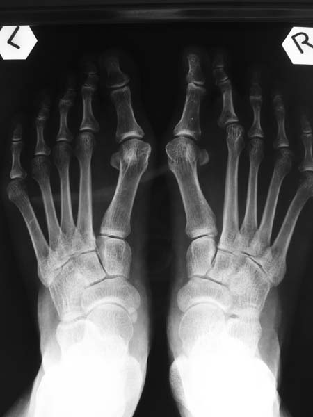 X-rays of Hallux Valgus