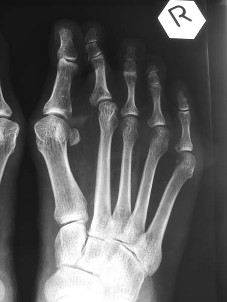 X-rays of Right Hallux Valgus