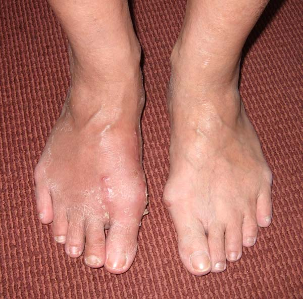 Outcome of Hallux Valgus Correction