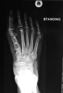Post-op x-rays AP Standing