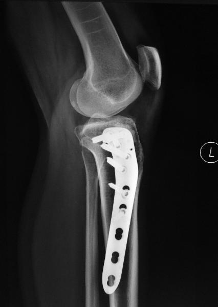 Lateral Tibial Plateau Fracture Treatment