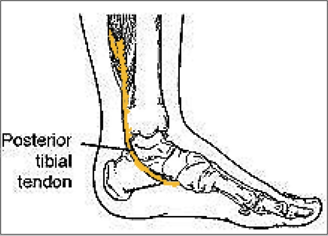 Adult Acquired Painful Flat Foot