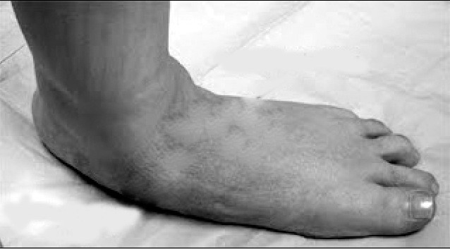 Adult Acquired Painful Flat Foot Posterior Tibial Tendon