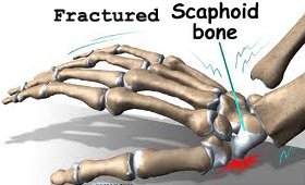 Fall on the outstretched hand resulting in scaphoid fracture