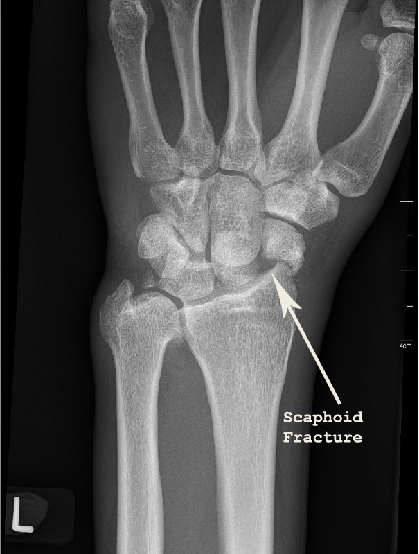 There is a fracture of the scaphoid waist.