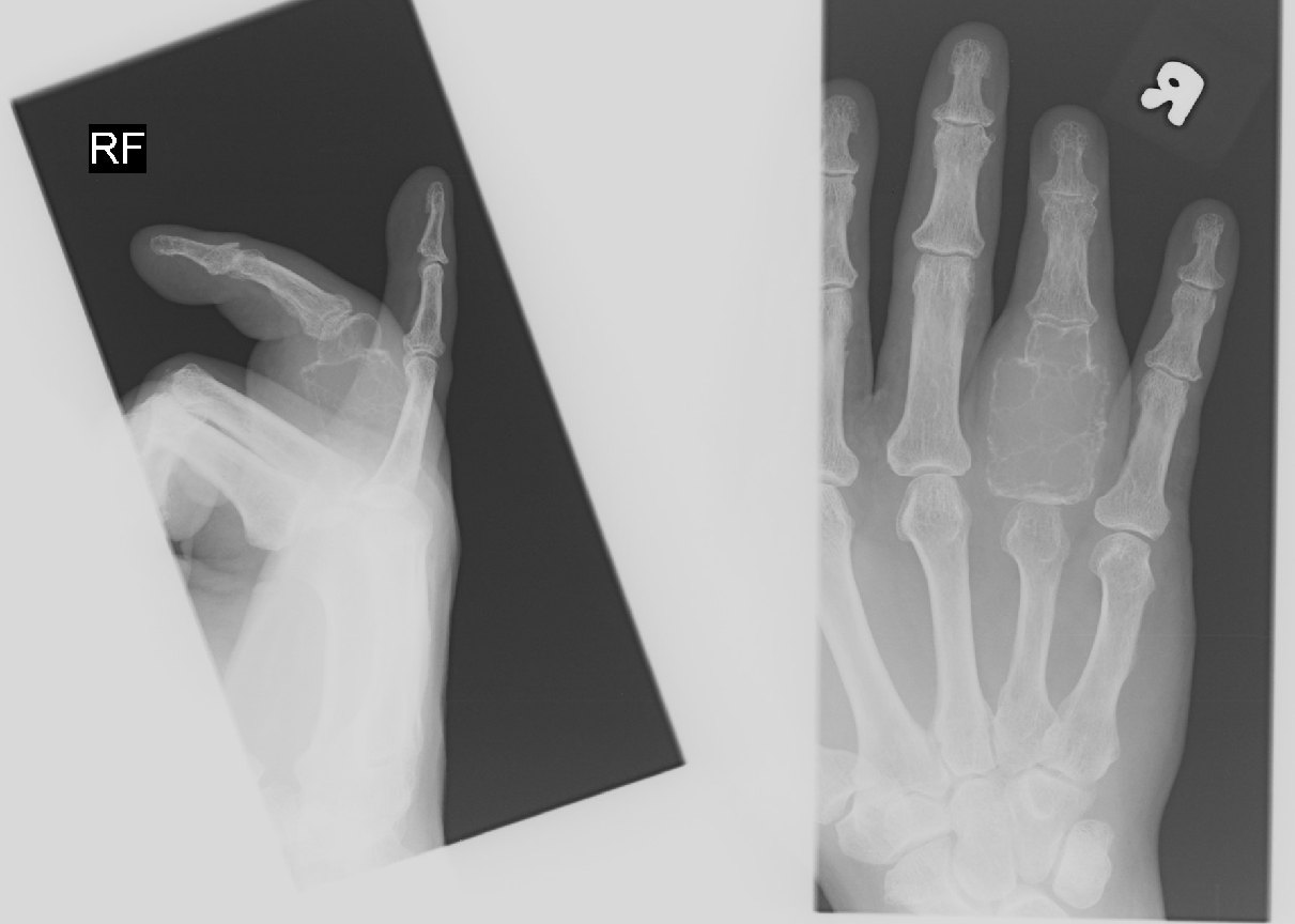 Bony Tumour of Right Ring Finger Proximal Phalanx