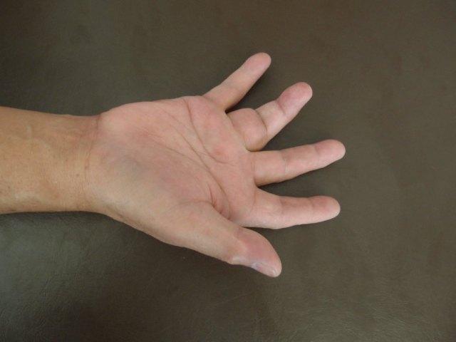 Giant Cell Tumour Finger (3)