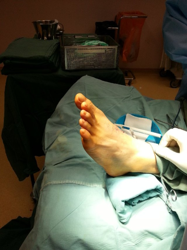 The big toe appears drooped compared to the other toes.