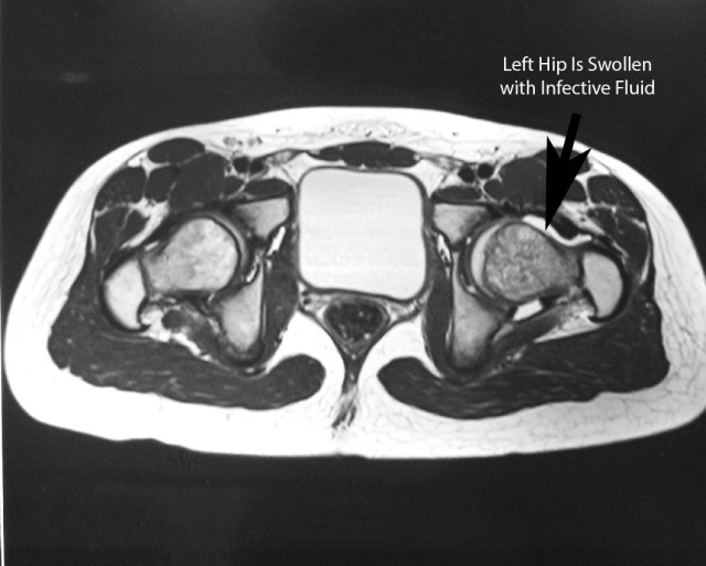 MRI showing fluid in the left hip joint causing a tense distension of that joint capsule