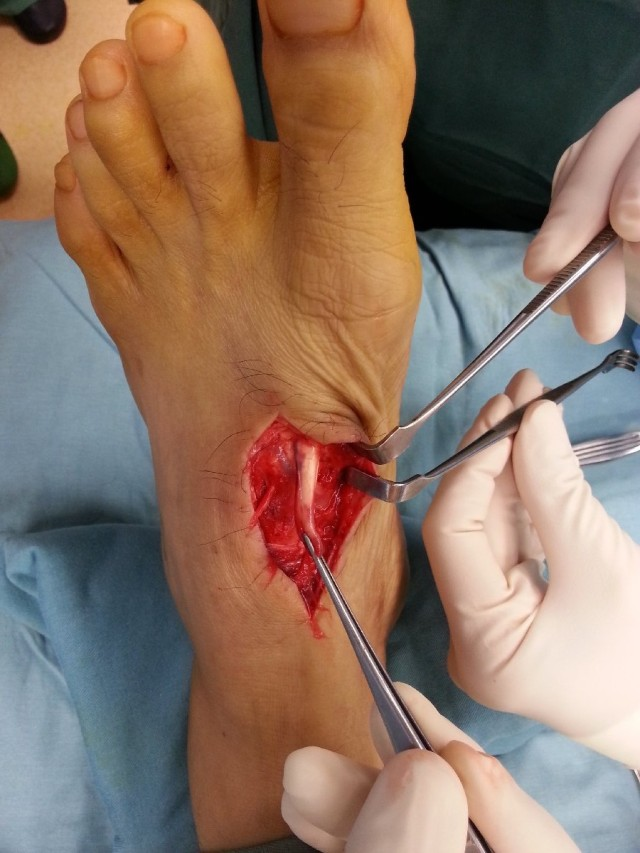 Completely lacerated extensor hallucis longus tendon to the left big toe.
