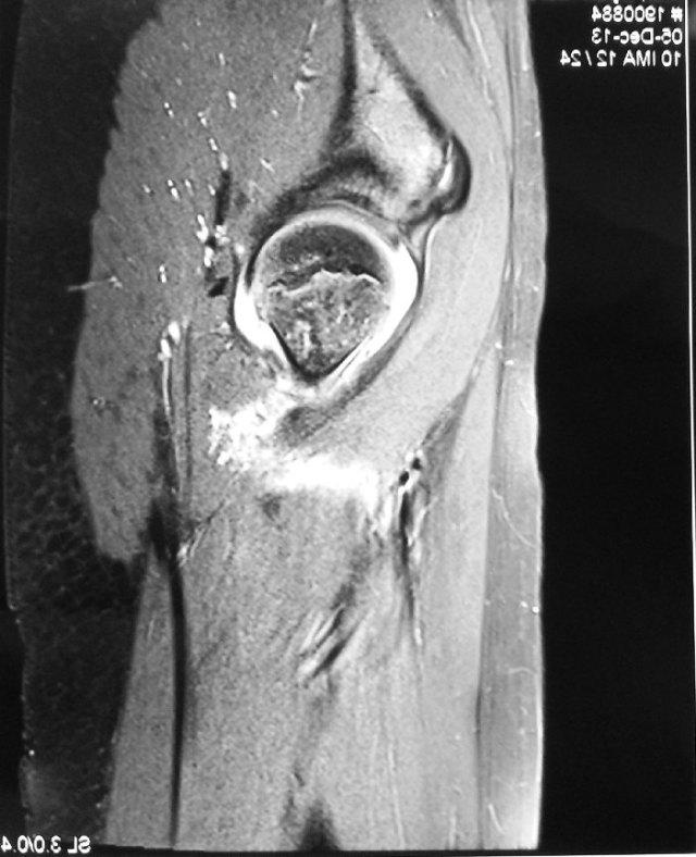 02 - MRI left Septic Hip