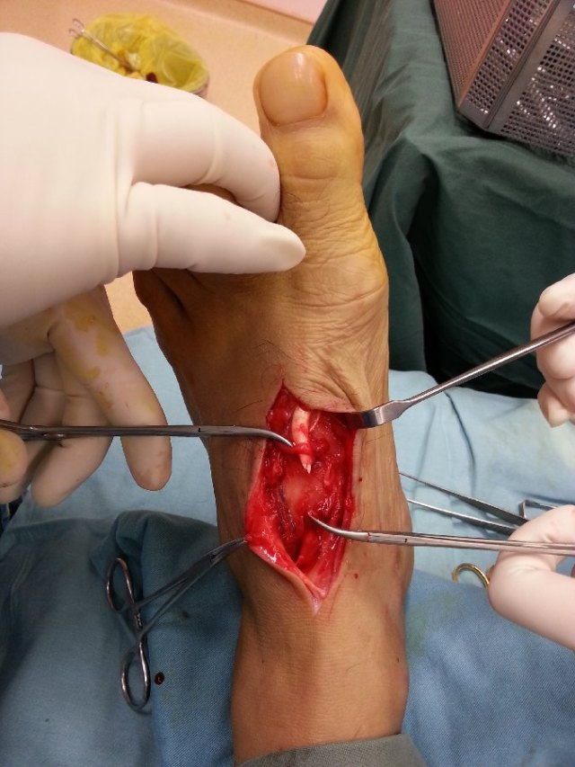 The proximal and distal ends of the cut tendon were exposed.