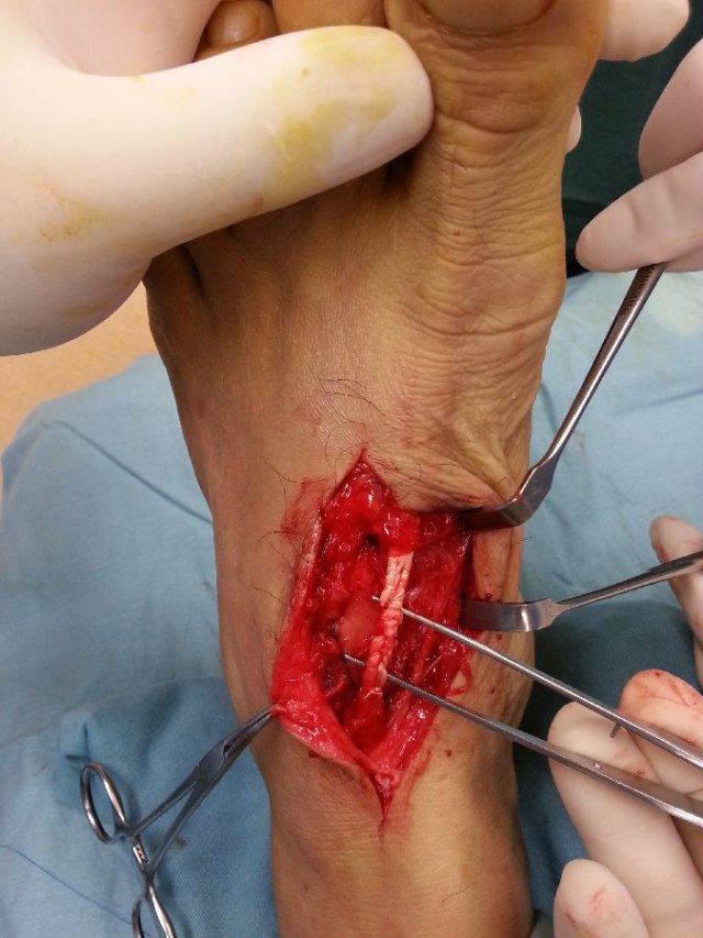 The cut extensor tendon was repaired using looped supramid sutures