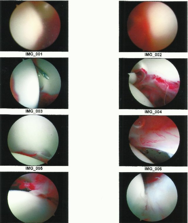 08 - Hip Arthroscopy