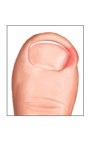 how to tell if your ingrown toenail needs surgery