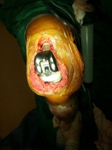 04 - A tumour prosthesis is used