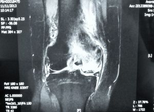 Avascular necrosis medial femoral ondyle right knee