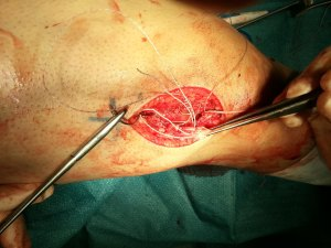 004 - The torn vastus lateralis tendon is repaired to the patella bone via suture anchors. By Dr HC Chang
