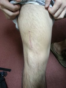 006 - The surgical wound has healed after vastus lateralis tendon repair. By Dr HC Chang