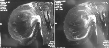 MRI showing left pectoralis major muscle rupture