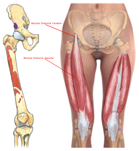 00.6 - Rectus-femoris-tendon