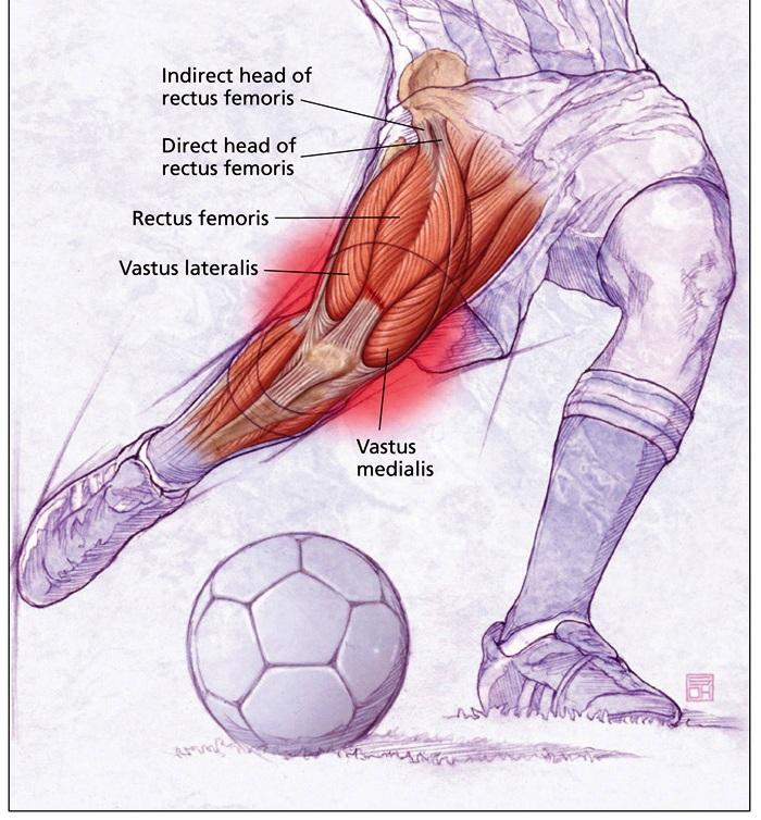 rectus femoris diagram rectus sheath diagram