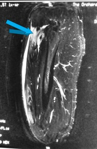 01 - MRI Rectus Femoris Proximal Tear