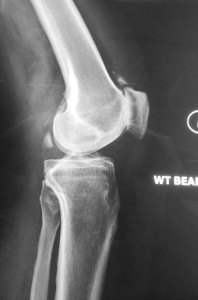 02 - Lateral Left Knee X-rays