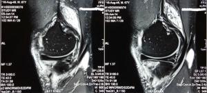 05 - MRI Left Knee