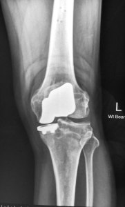 14 - Bi Compartmental Knee Makoplasty AP