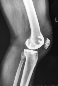 15 - Bicompartmental Knee Makoplasty Lat