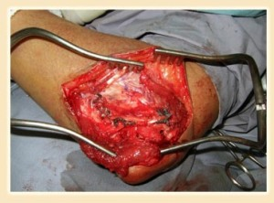 elbow-ligament-reconstruction-3
