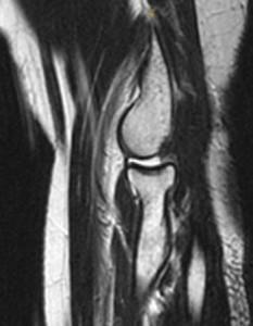LUCL Injury 1