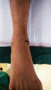 Ankle Arthroscopy | HC Chang