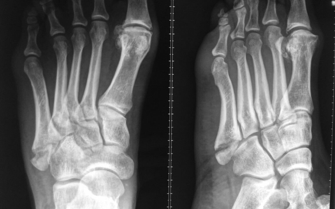 5th Metatarsal Base Displaced Fracture | HC Chang ...